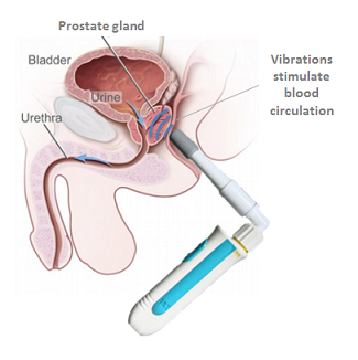 Prostate male multiple orgasm technique