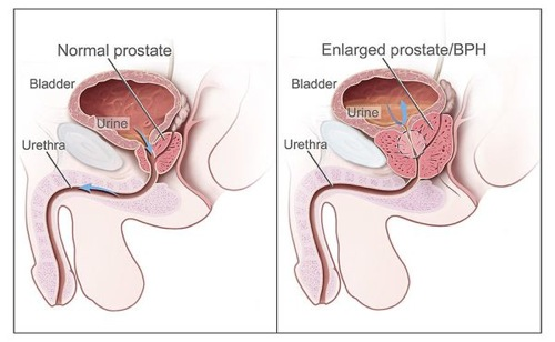 Diagram of an Enlarged Prostate