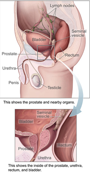 Diagram of Prostate Gland