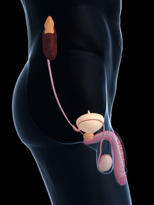 cystoscopy procedure for your prostate
